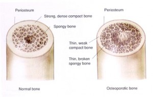 osteoporosis-illustrated